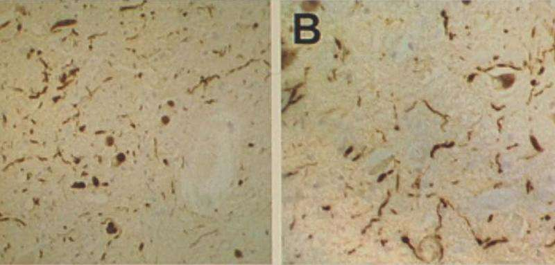 Reducing harmful proteins in the fight against dementia