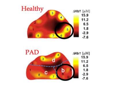 Shining new light on vascular diseases in diabetics