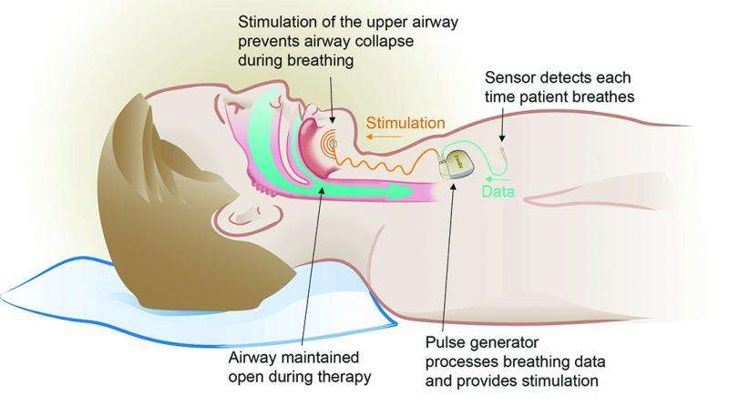 Sleep apnea therapy treats patients through upper airway stimulation