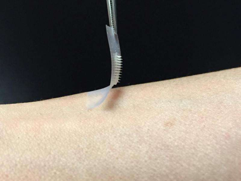 Smart insulin patch could replace painful injections for diabetes