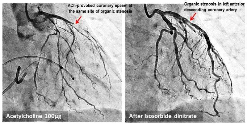 Spasm at site of atherosclerotic coronary artery narrowing increases risk of heart attack