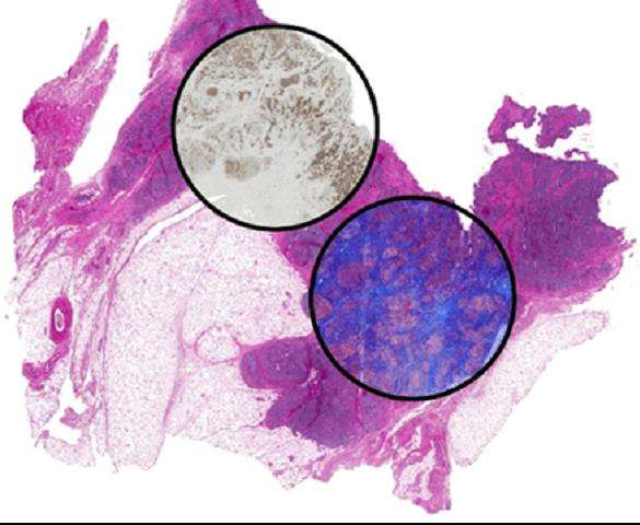 Stainless staining provides a new tool for clinicians and researchers