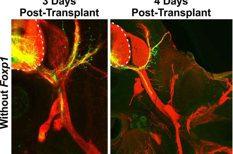 Stem cell scientists develop more effective way to create motor neurons