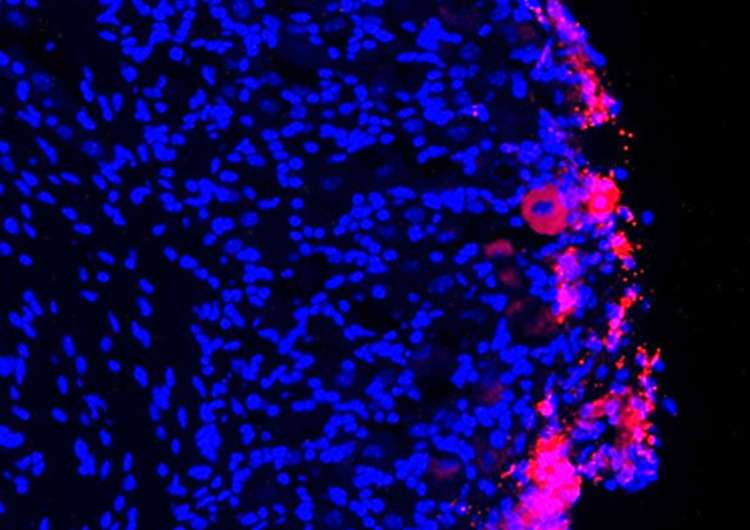 Stem cells provide lasting pain relief in mice