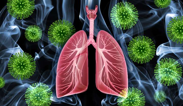 Vitamin A receptor may help protect lungs from smoking, viral infections
