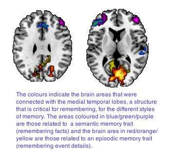 What is your memory style?