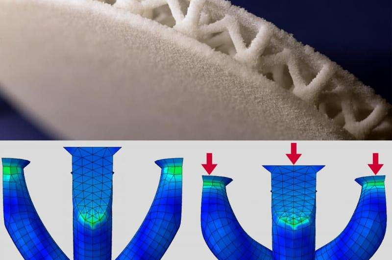 3-D printing customized insoles for diabetes patients