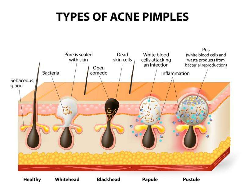 Acne treatment—antibiotics don't need to kill bacteria to clear up your skin