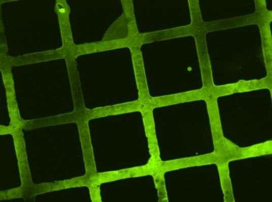 Biodegradable polymer coating for implants