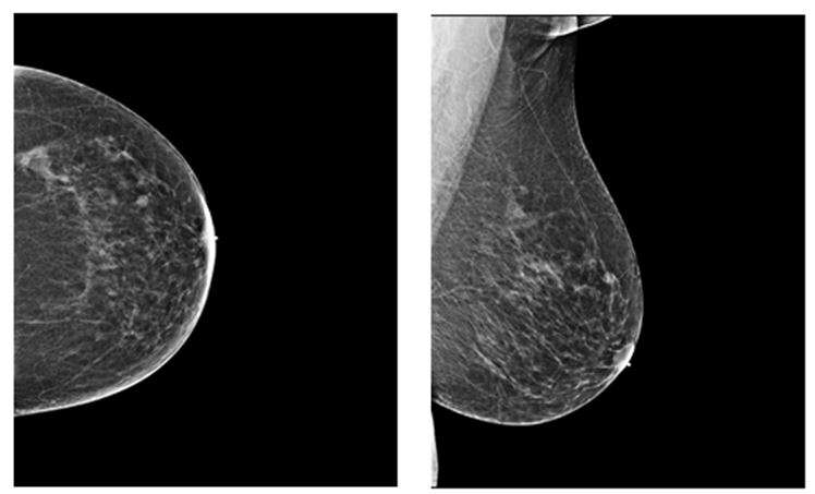 Breast density in quantifying breast cancer risk