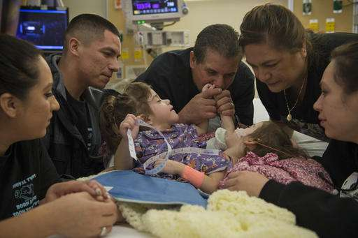 California conjoined twins separated in successful surgery