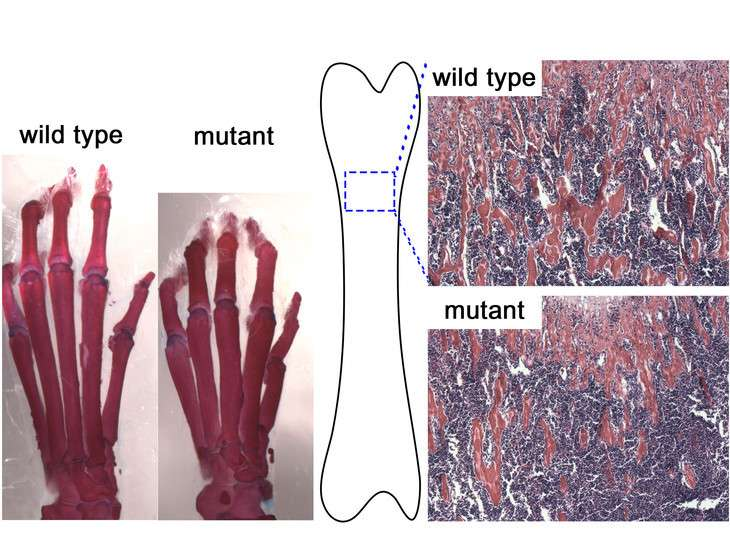 Key regulator of bone development identified