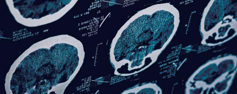 Subconcussions cause changes to brain, study of college football players shows