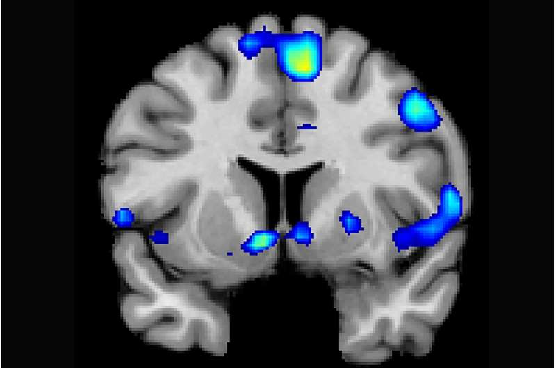 This is your brain on God: Spiritual experiences activate brain reward circuits