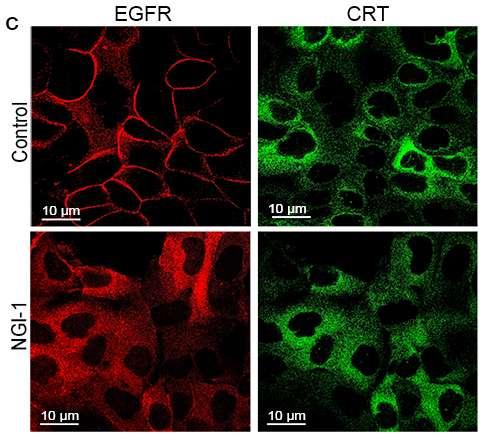 Study identifies new way to suppress lung tumors