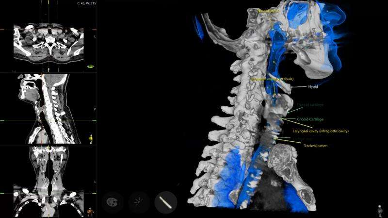 New tool for medical students' anatomy lessons – a virtual scalpel