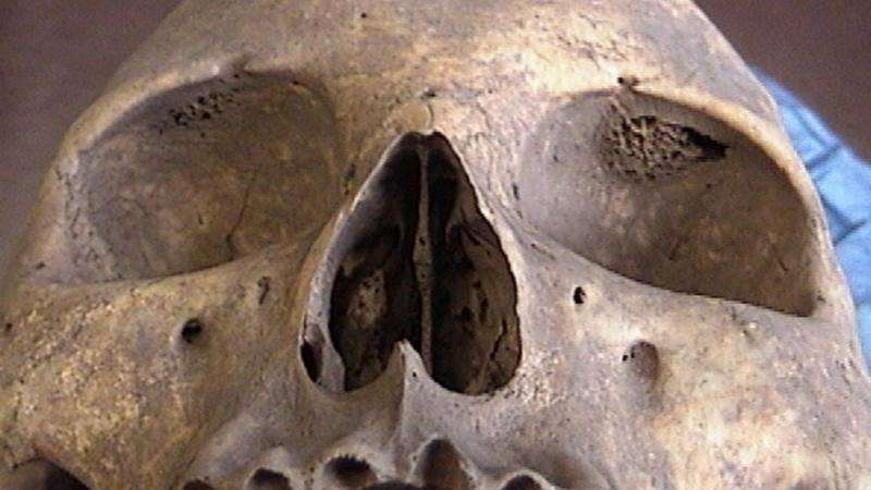 Research finds skull condition thought extinct is actually widespread
