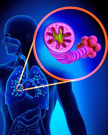 Study finds shared network of genes in COPD and pulmonary fibrosis