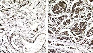 Researchers uncover how 'silent'genetic changes drive cancer