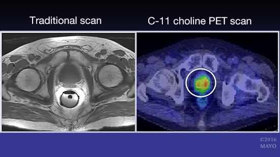 Researchers map prostate cancer relapse using C-11 choline PET and MRI