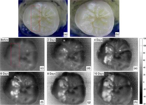 New imaging method could enable dentists to detect and heal tooth cavities much earlier