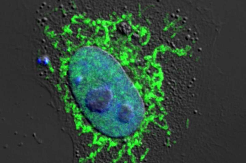New research explains why HIV is not cleared by the immune system