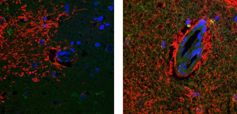 Study suggests possible new target for treating and preventing Alzheimer's