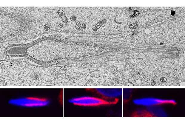 Study reveals gene's role in male infertility