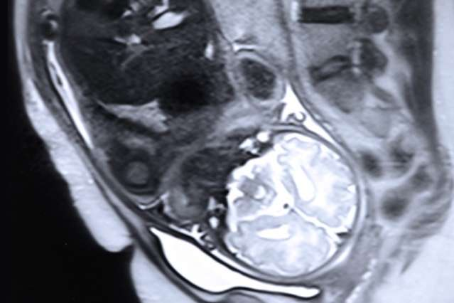 Algorithm could help analyze fetal scans to determine whether interventions are warranted
