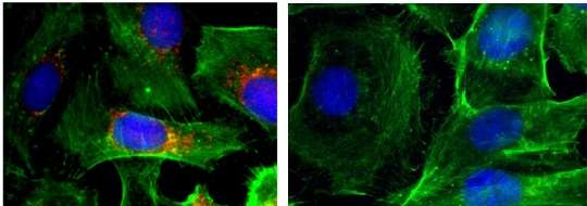 New nanoparticle technology developed to treat aggressive thyroid cancer