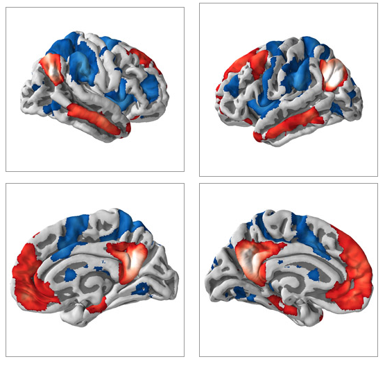 Abnormal brain interactions harm consciousness
