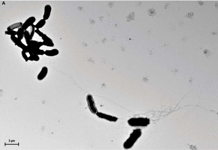 Human amyloid-beta acts as natural antibiotic in the brains of animal models