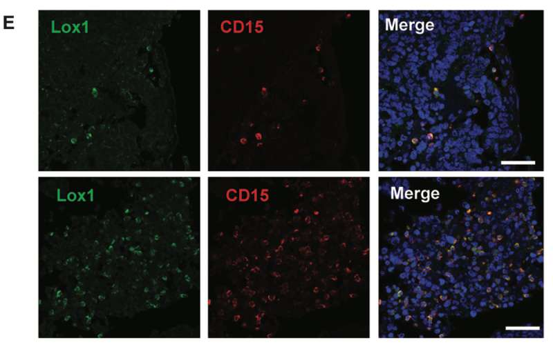 Scientists identify marker for myeloid-derived suppressor cells