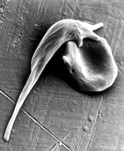 Genome engineering paves the way for sickle cell cure