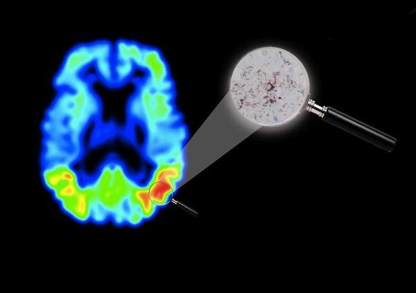 New imaging technique in Alzheimer's disease opens up possibilities for drug development