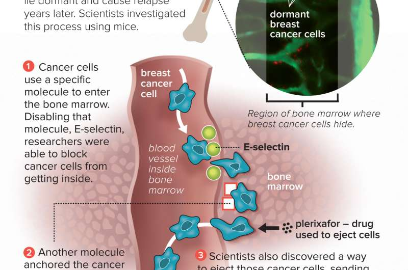 Scientists block breast cancer cells from hiding in bones