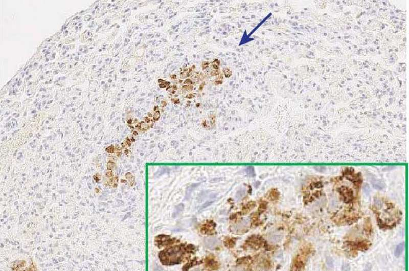 Researchers find link between death of tumor-support cells and cancer metastasis