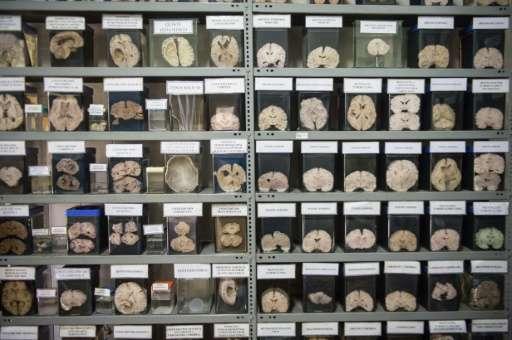 A collection of sick human brains is displayed at Santo Toribio de Mogrovejo Hospital