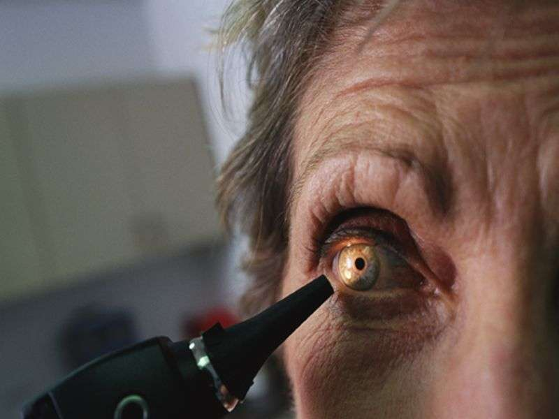 <i>ICD-9</i> codes not accurate enough for ocular disease