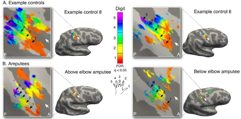 Amputees' brains remember missing hands even years later