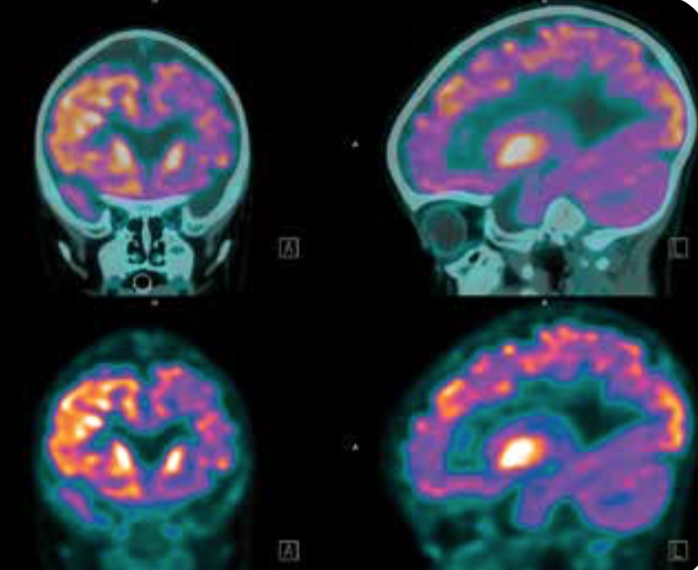Atrial fibrillation patients are at increased risk of dementia, regardless of anticoagulation use