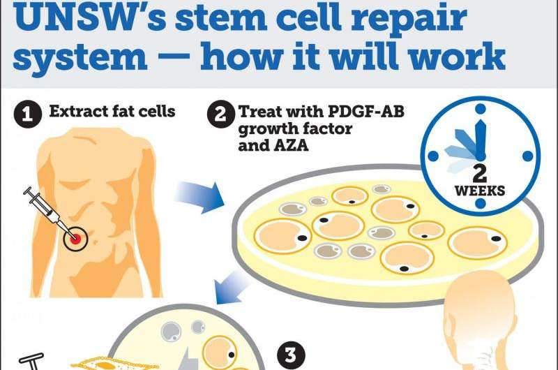 Australian scientists develop 'game changing' stem cell repair system