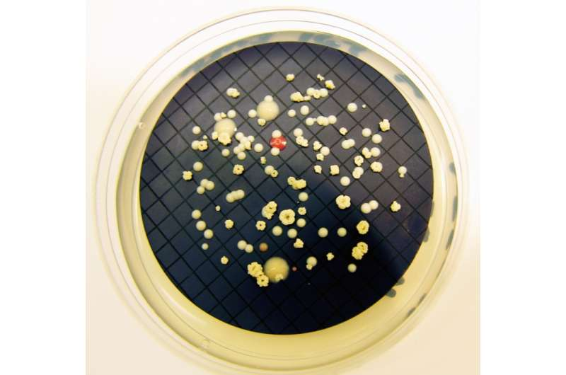 Bacterial biofilms in hospital water pipes may show pathogenic properties