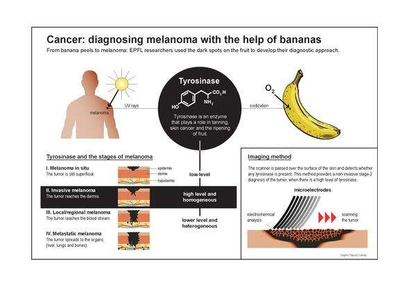 Banana peels can help identify the stages of melanoma