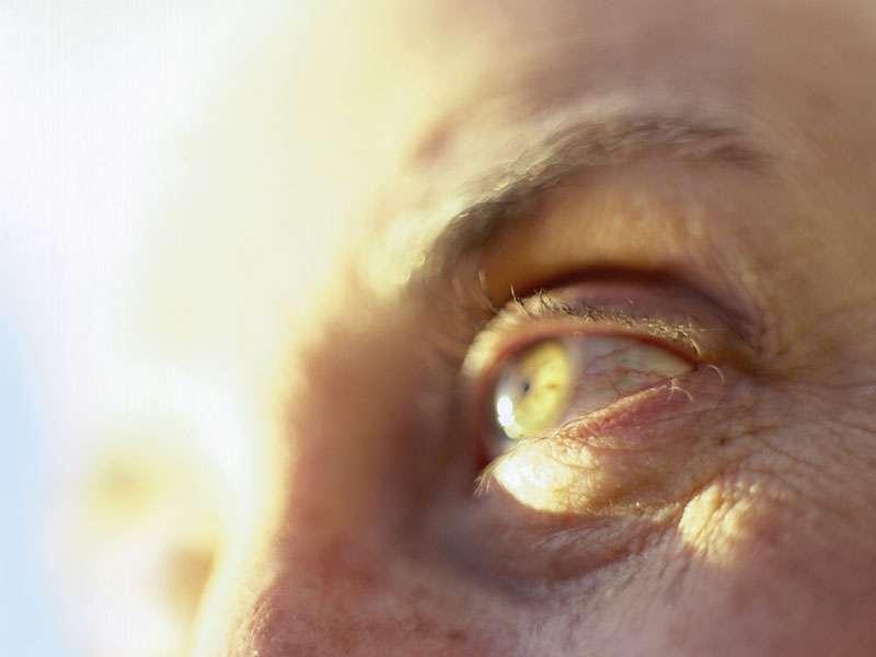 Bevacizumab, triamcinolone up outcome after cataract surgery