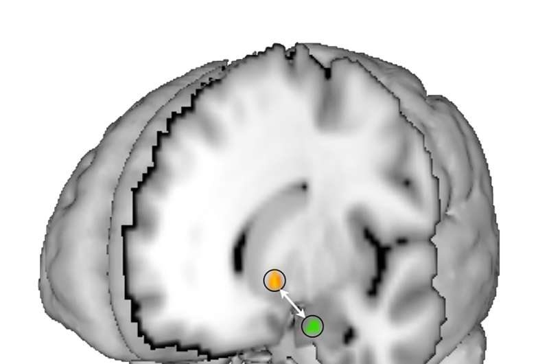 Brain study reveals how teens learn differently than adults