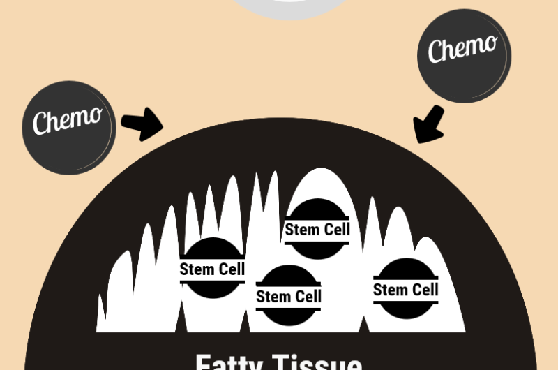 Cancer stem cells in 'robbers cave' may explain poor prognosis for obese patients