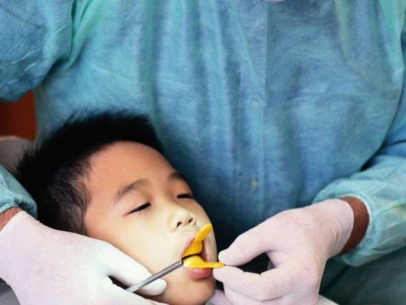 CDC urges dental sealants for all low-income children