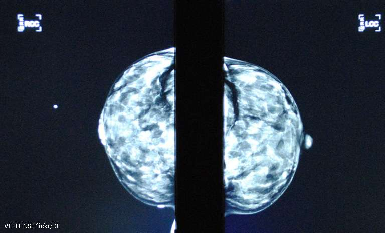 Discovery of potential treatment for aggressive form of breast cancer