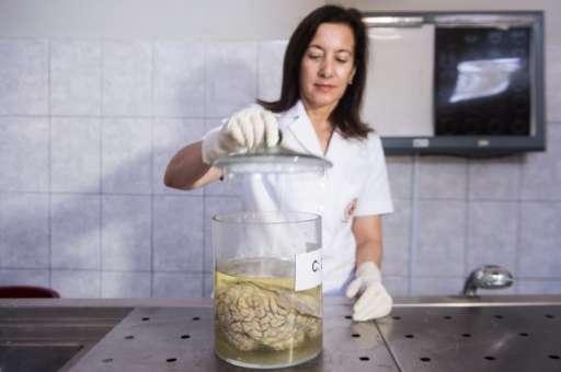Doctor Diana Rivas opens a jar containing a human brain immersed in formaldehyde at the Santo Toribio de Mogrovejo Hospital